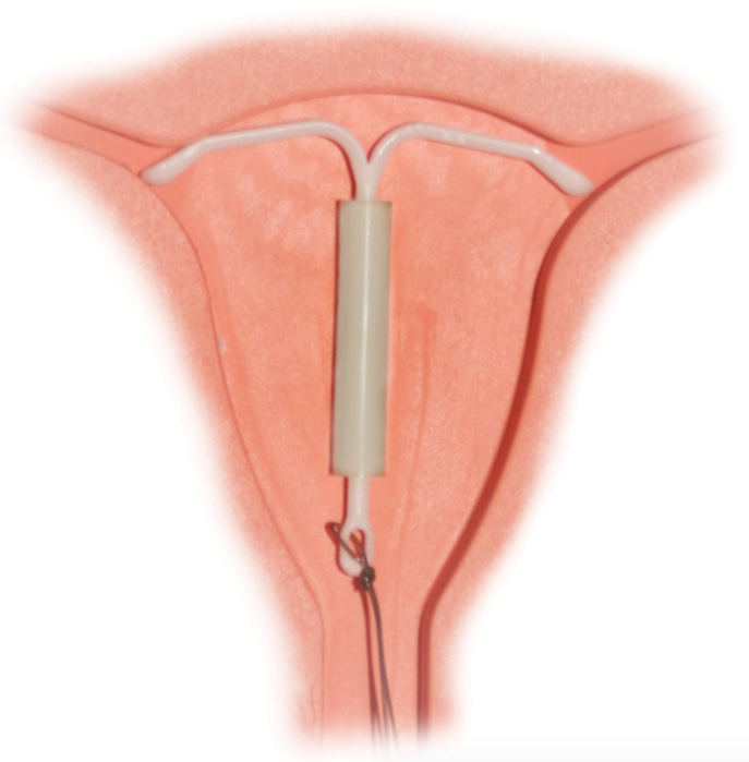The hormonal IUD uses progesterone to do its spermicidal bidding.