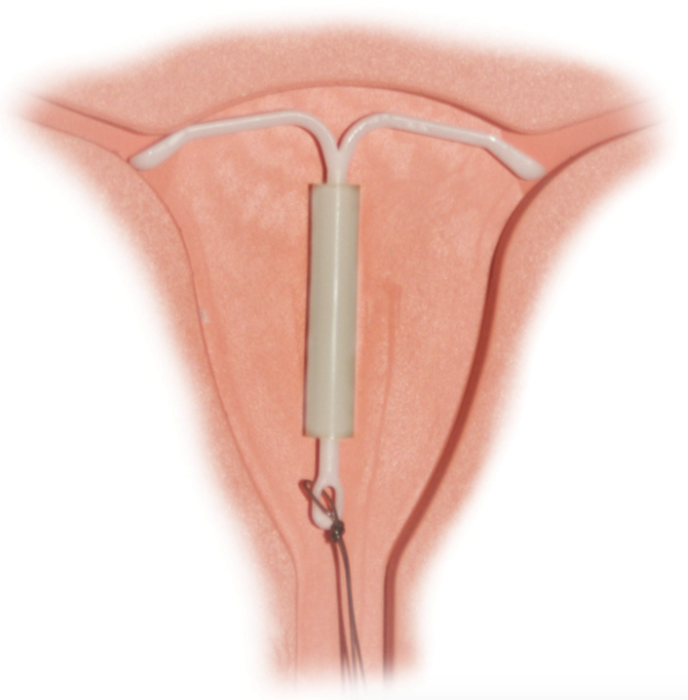 The hormonal IUD uses progesterone to do its spermicidal bidding.