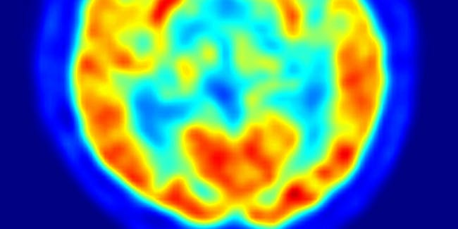 brain on drugs scan fmri
