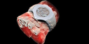 3D image, new type of X-Ray