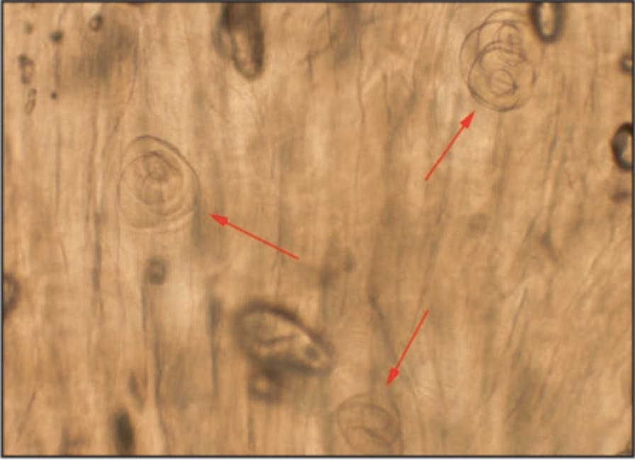 This microscope image shows the Trichonella spiralis cysts in the questionable boar meat, magnified 100x.