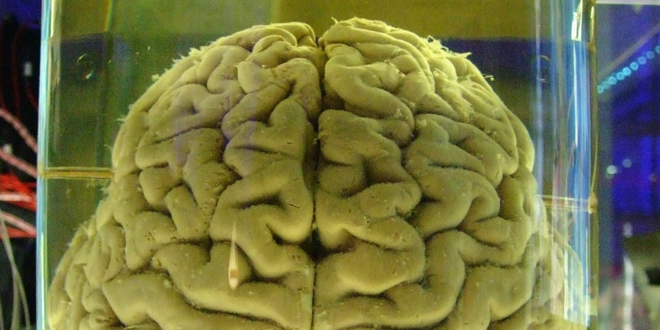 The almighty brain.