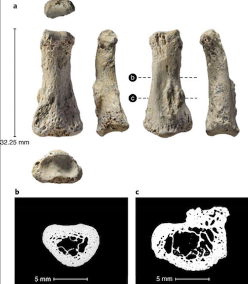 Finger bone, ancient human