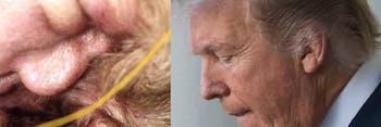 Donald Trump cyst