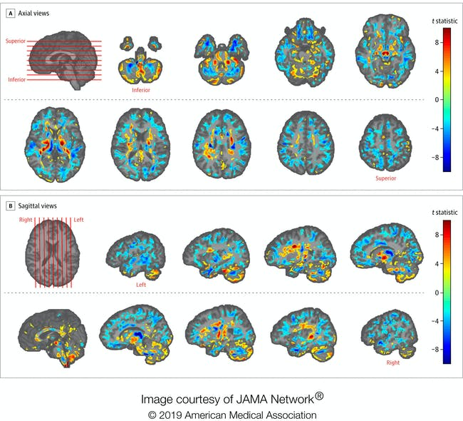 In the yellow and red regions, patients had higher brain matter volume than the control subjects, and in the blue regions, the patients had lower brain matter volume than controls.