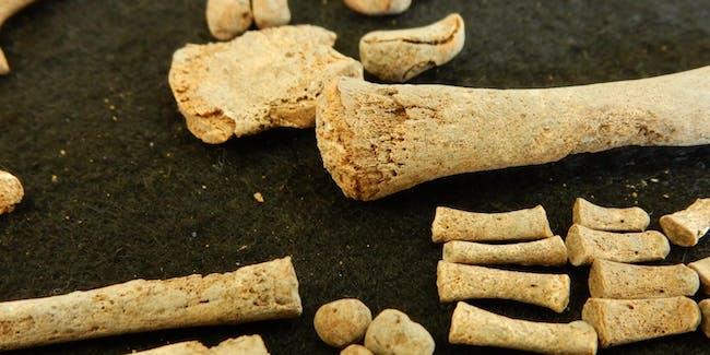 bones, syphilis specimen