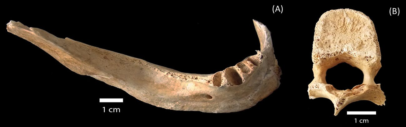 The victim's mandible collected at Hirose and Nakahiro-machi.The victim's mandible collected at Hirose and Nakahiro-machi.