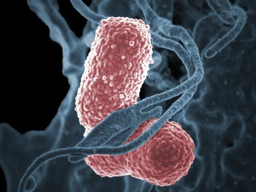 An American Woman Died From an Antibiotic-Resistant Infection