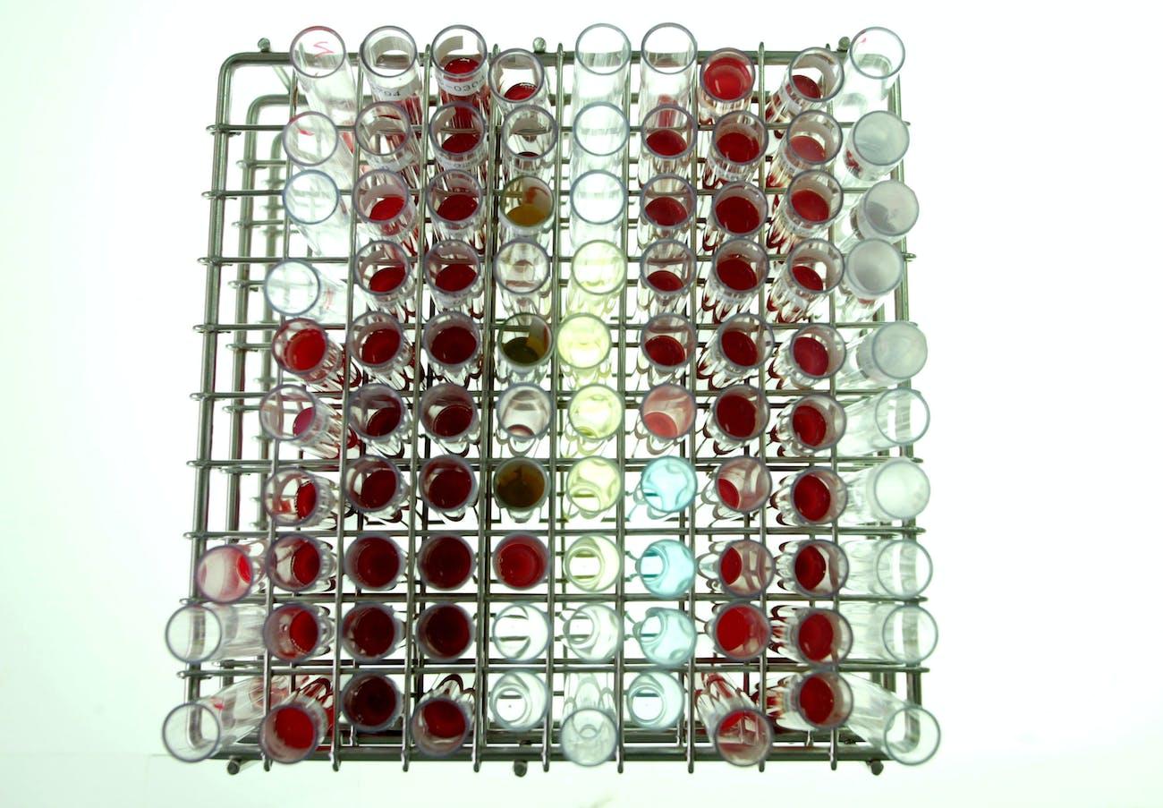 blood test tubes rack laboratory samples