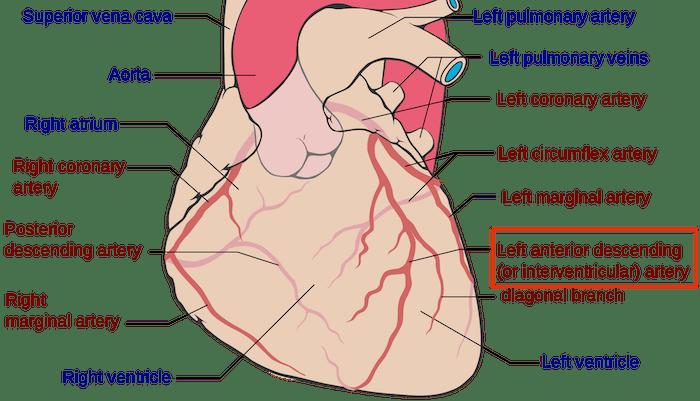 LAD artery heart attack