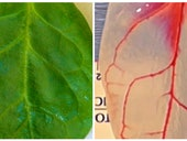 Scientists Turned Spinach Salad Into a Living Heart