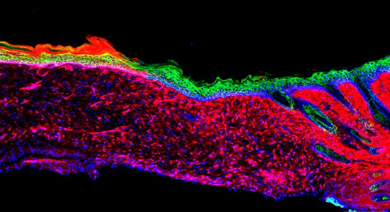 This image is a cross-section of regenerated skin with different cell types indicated with fluorescent tags. Green is keratinocytes, red is mesenchymal cells, blue is the cell nucleus and magenta marks the innermost layer of skin epithelium.