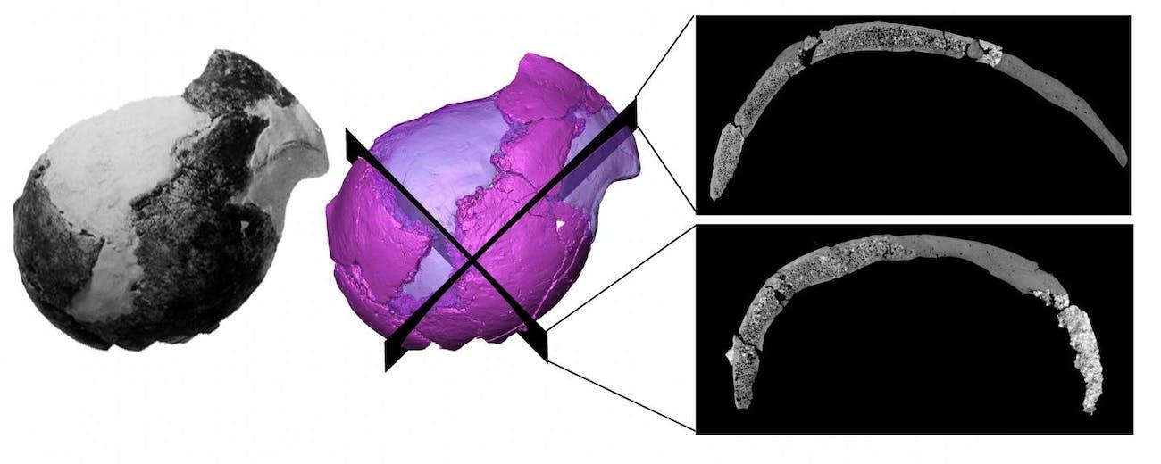 cranium x-ray