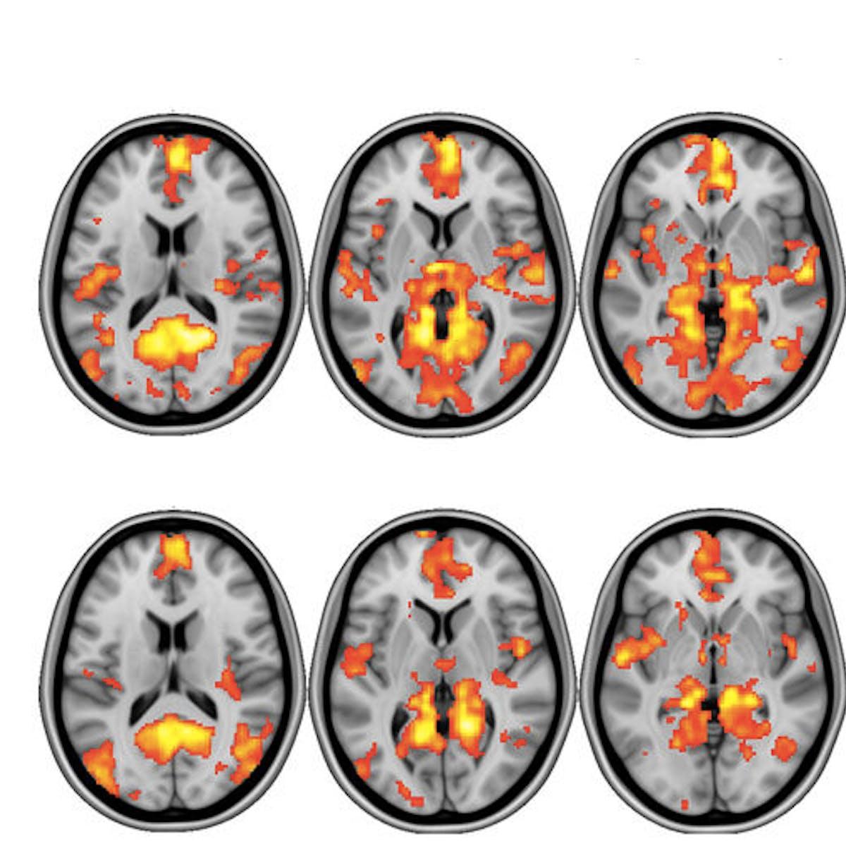 Psilocybin in Magic Mushrooms Hits Brain's 'Reset' Button, Say Scientists