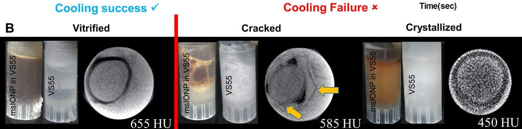 cryogenic links of the week - cryogenic storage