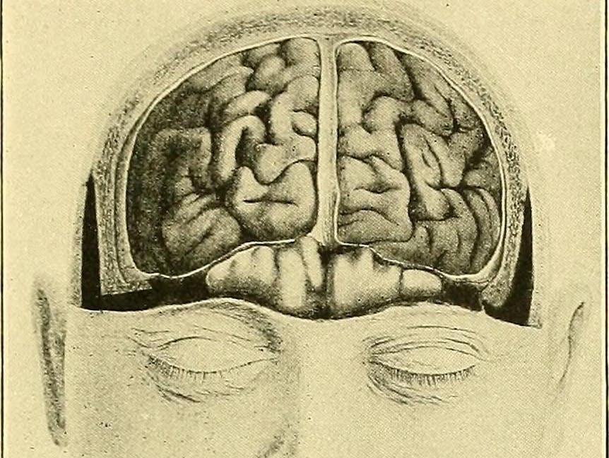 """Brain-Boosting"" Supplements: A Neurologist Splits Fact From Fiction"