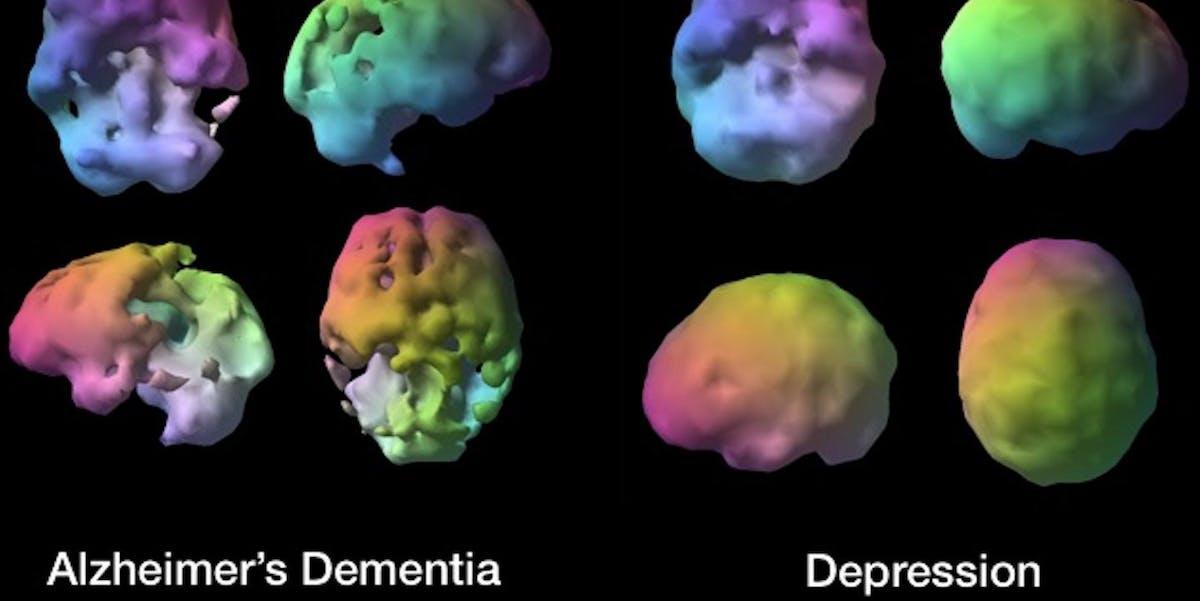 brain, depression