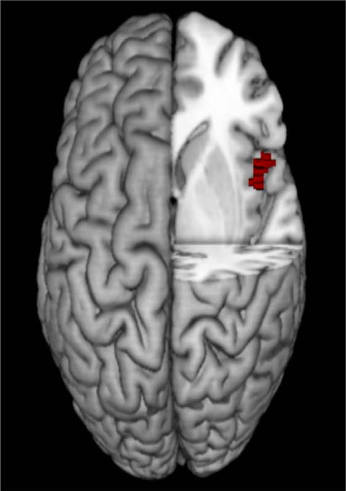 This MRI scan shows the slightly larger right anterior insula possessed by the test subjects who risked their avatars' lives to save their colleagues.