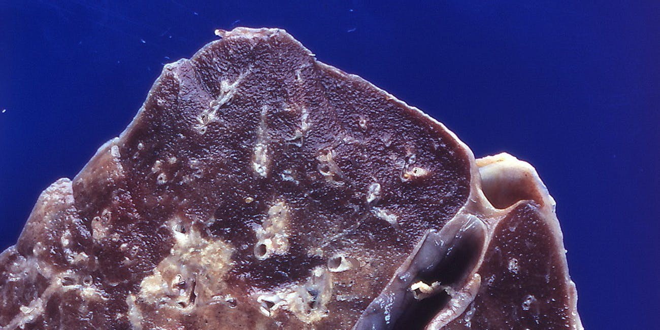 A lung with cryptococcal infection.
