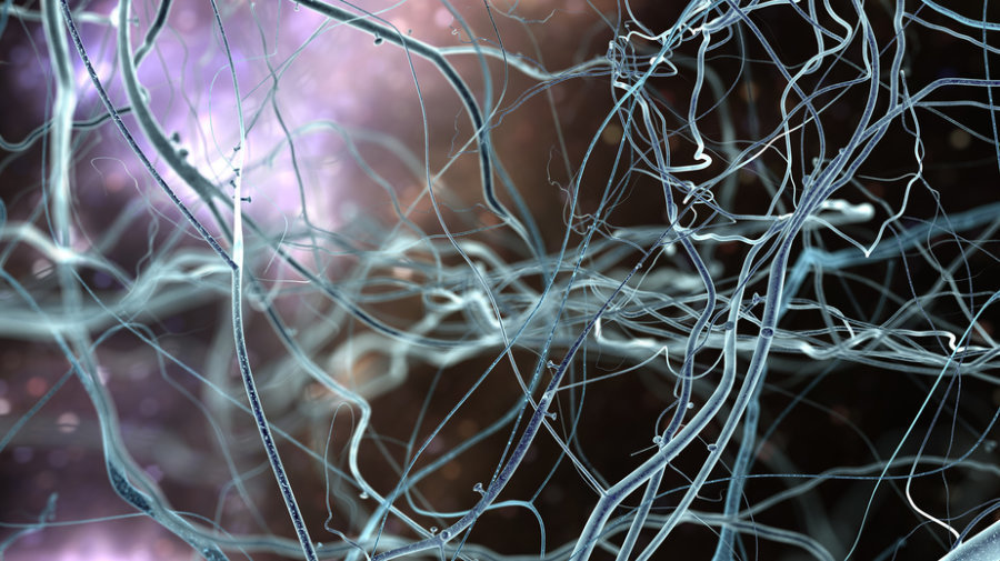 Artist rendition of what neurons look like.