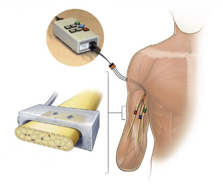 Electrical stimulation was delivered by an external stimulator (top left) through percutaneous leads to FINEs implanted on the median, ulnar, and radial nerves of an upper-limb amputee (bottom left). Each electrode contact evokes sensory percepts on small regions of the missing hand of the subject.