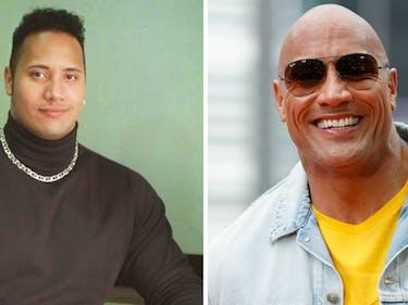 Dwayne The Rock Johnson baldness alopecia genetics science