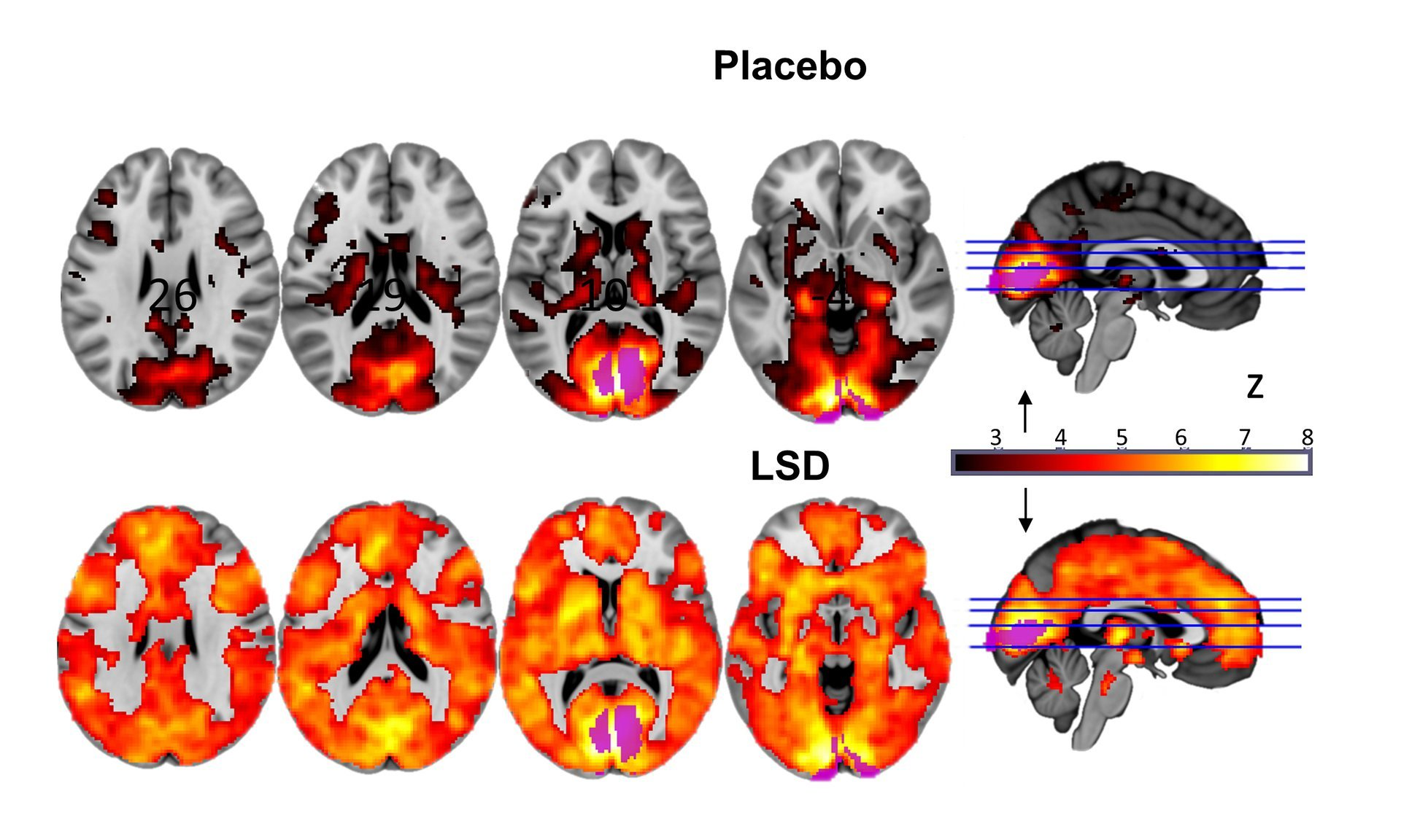 The top row shows a normal brain; the bottom shows a brain on LSD (note the orange flares of activity).