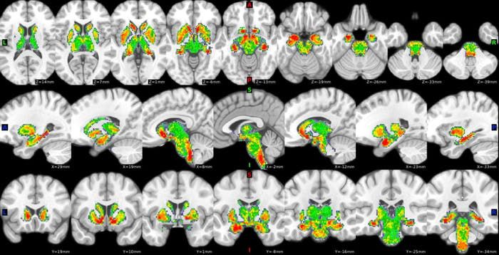 Long term cannabis use appears to alter the parts of the brain linked to negative emotion.