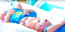 Conjoined Twins Joined at Head to Be Separated in Rare Surgery