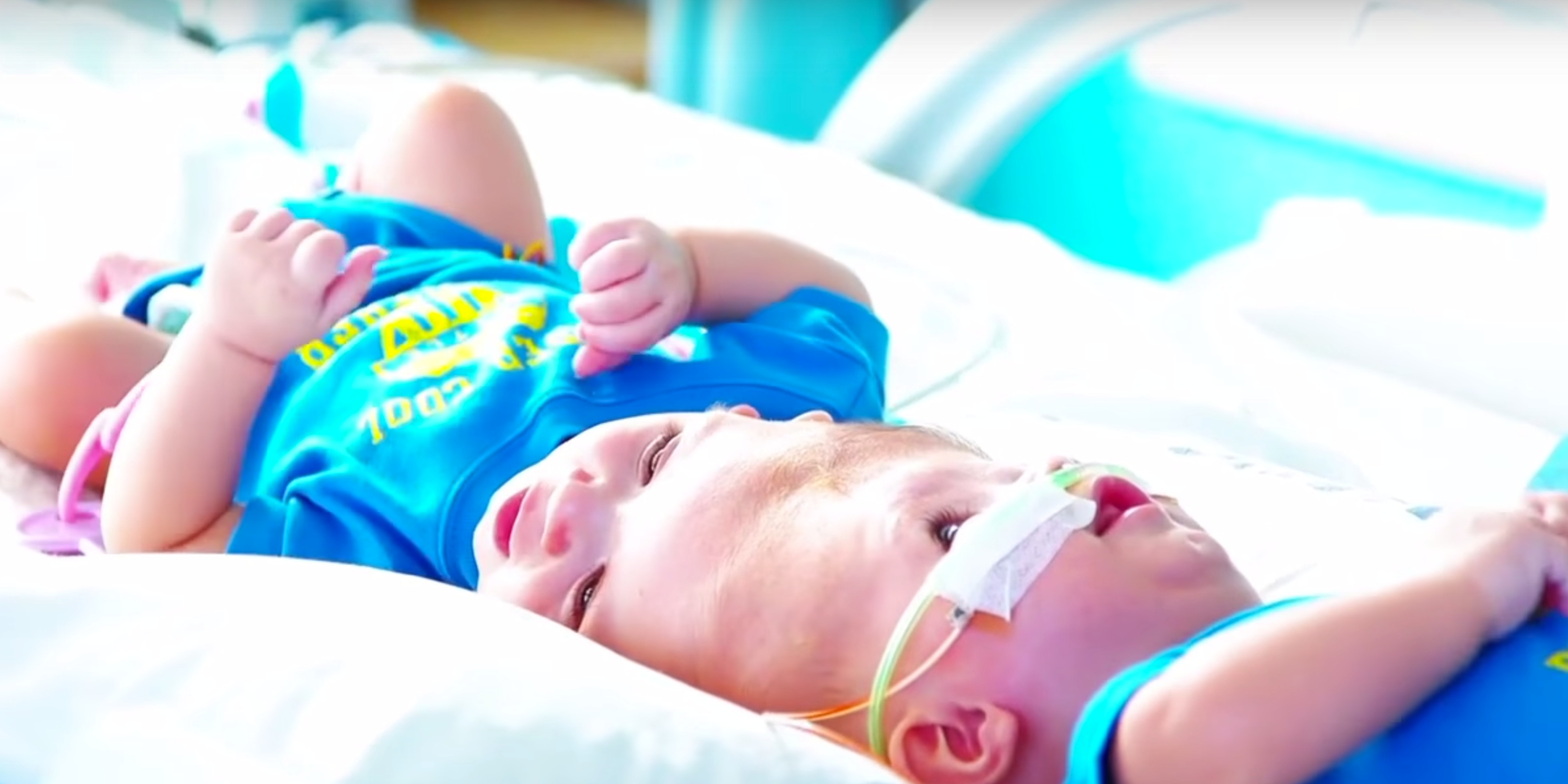 Conjoined twins Anias and Jadon McDonald are being separated on Thursday.