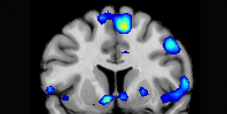 Areas associated with the brain's reward circuit, in particular the nucleus accumbens, were activated when devout study participants felt religious joy.