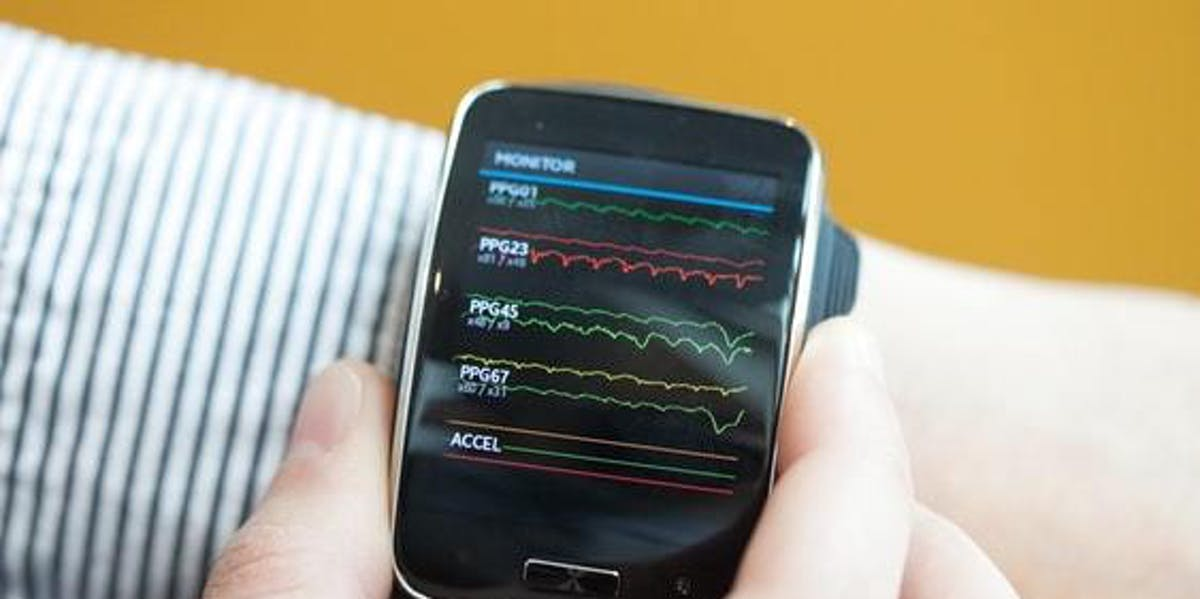 Any vitals-tracking smart wearable could do the job.