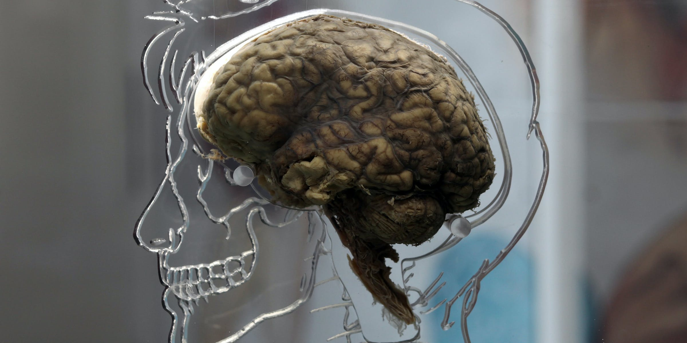 The Prejudiced Brain Is the Slow Brain   Inverse