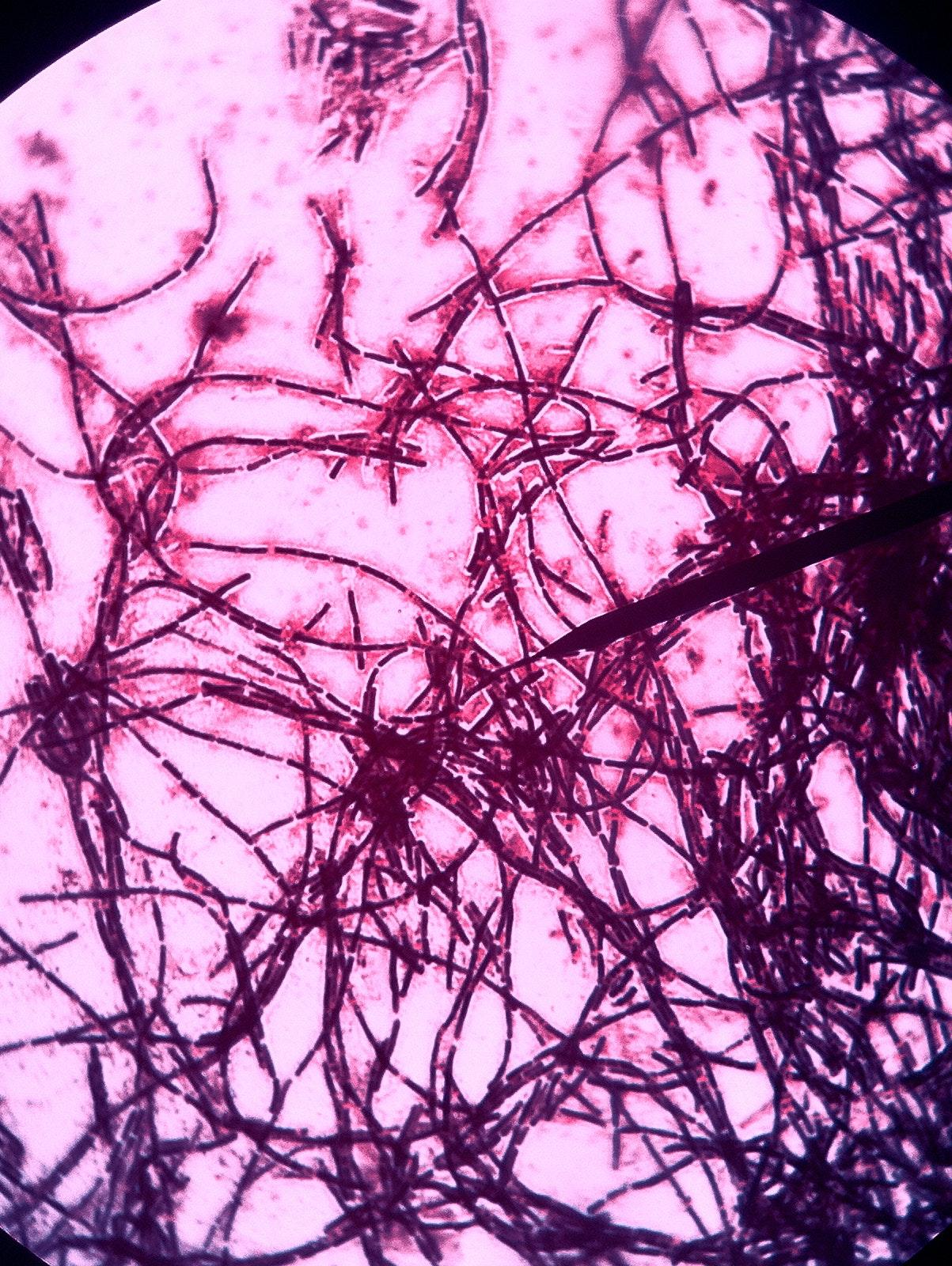Bacillus Subtillis