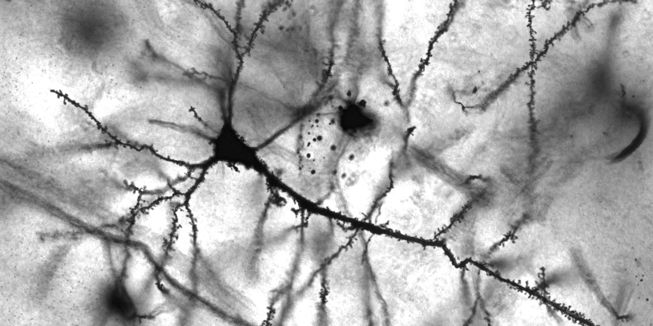 A Golgi-stained pyramidal neuron in the hippocampus.