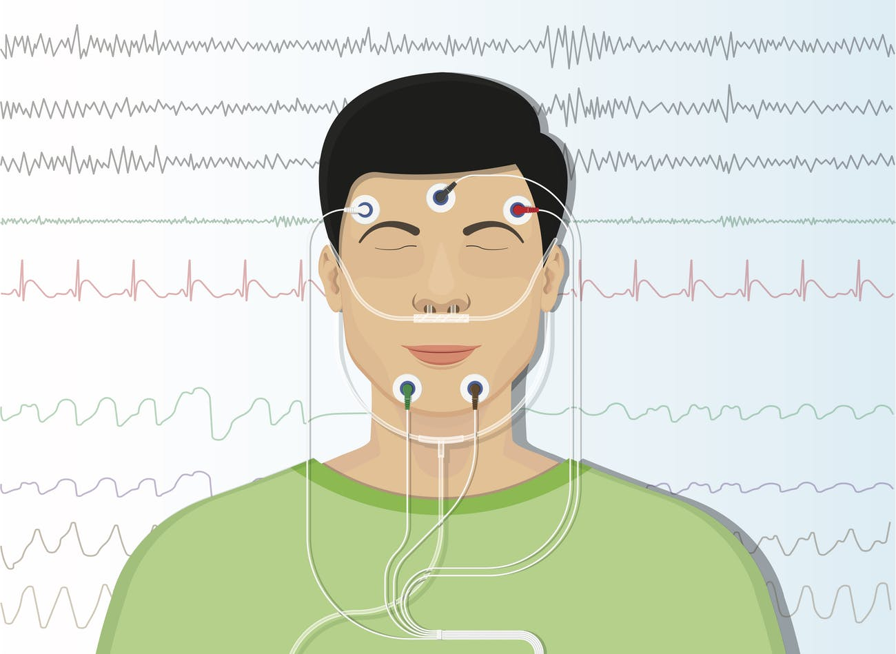 electrodes sleep apnea
