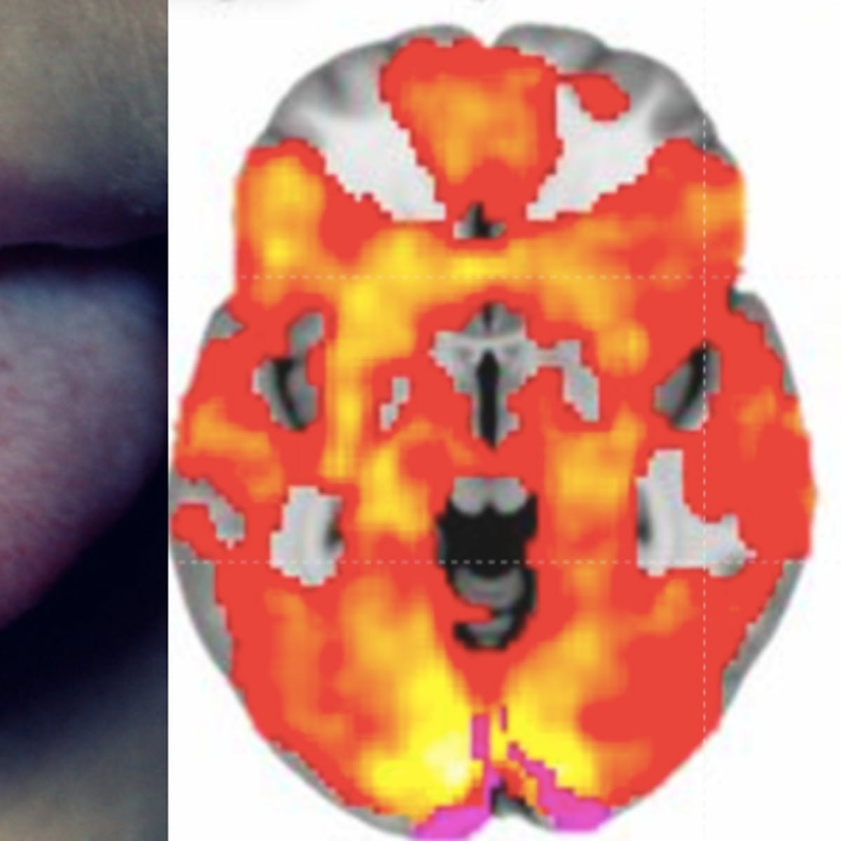 What Your Brain Actually Looks Like on Different Drugs