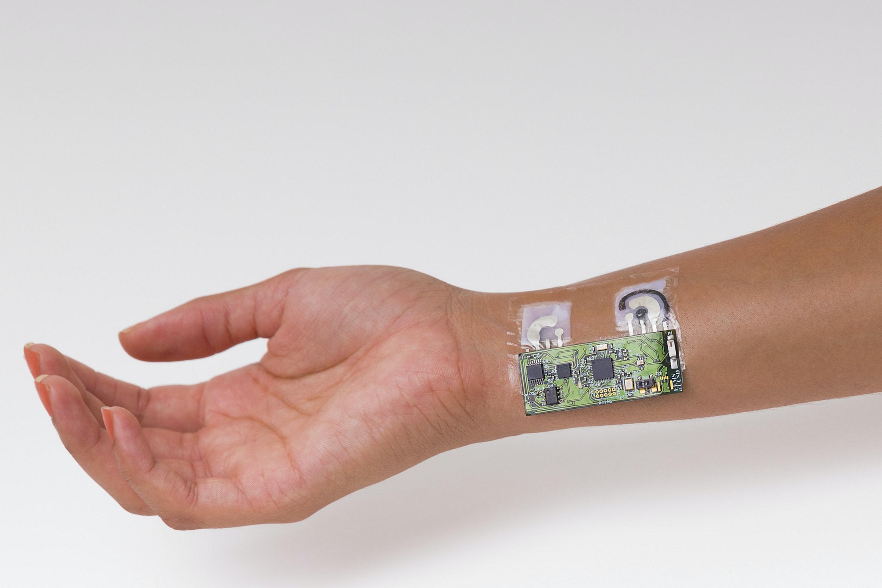 The biosensor prototype