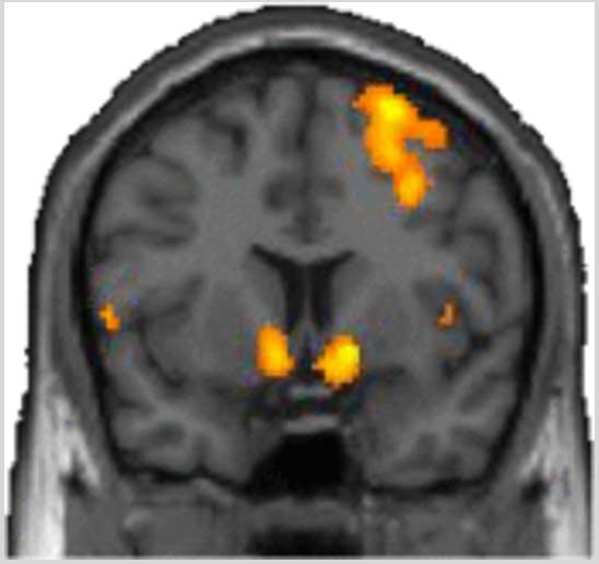 ventral striatum