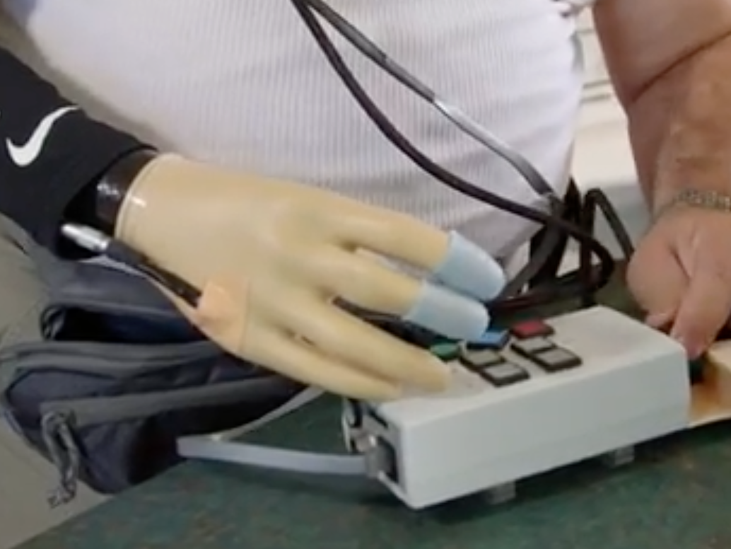 "Researchers Just Developed a Way for Prosthetic Hands to ""Feel"""