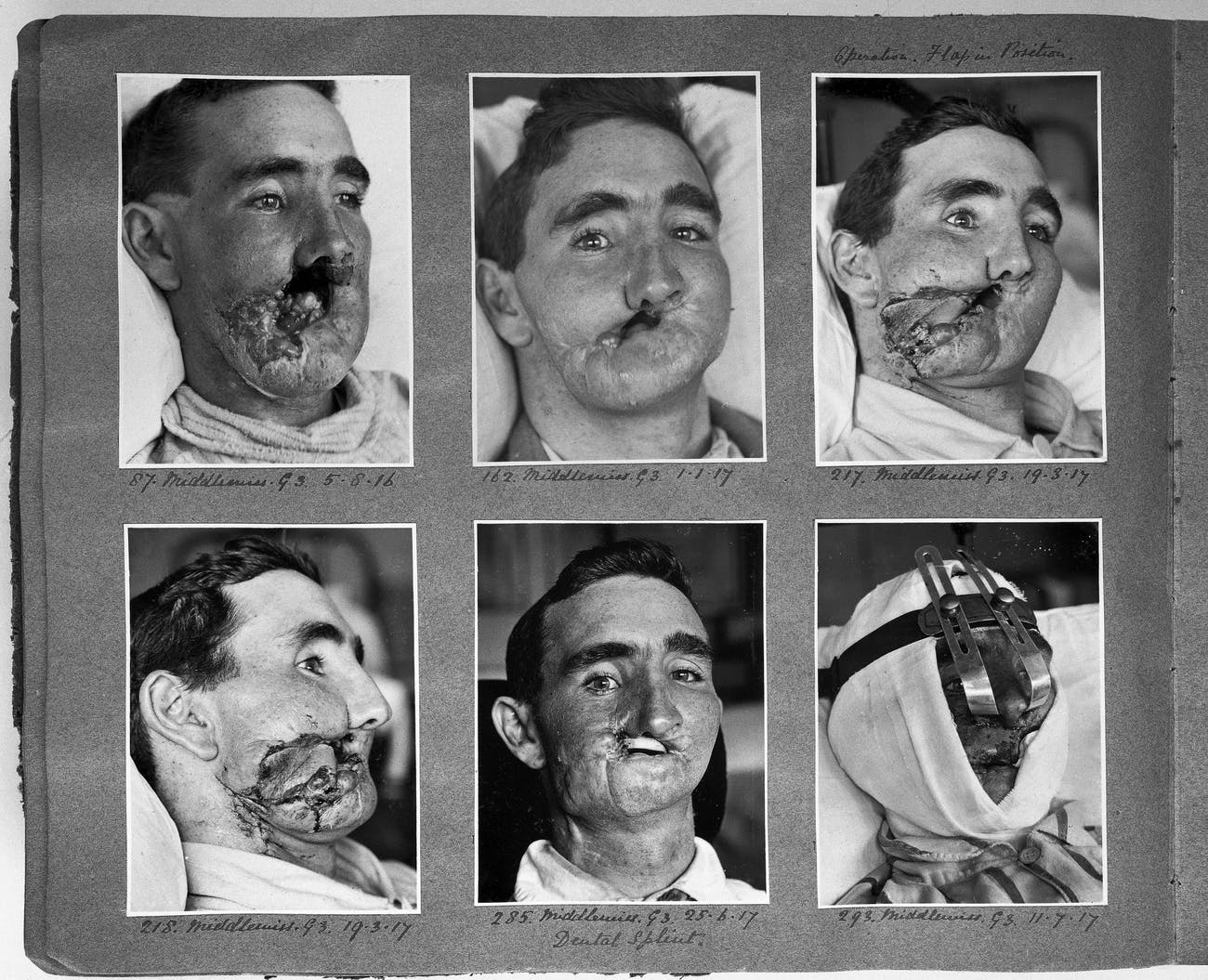 reconstructive surgery WWI