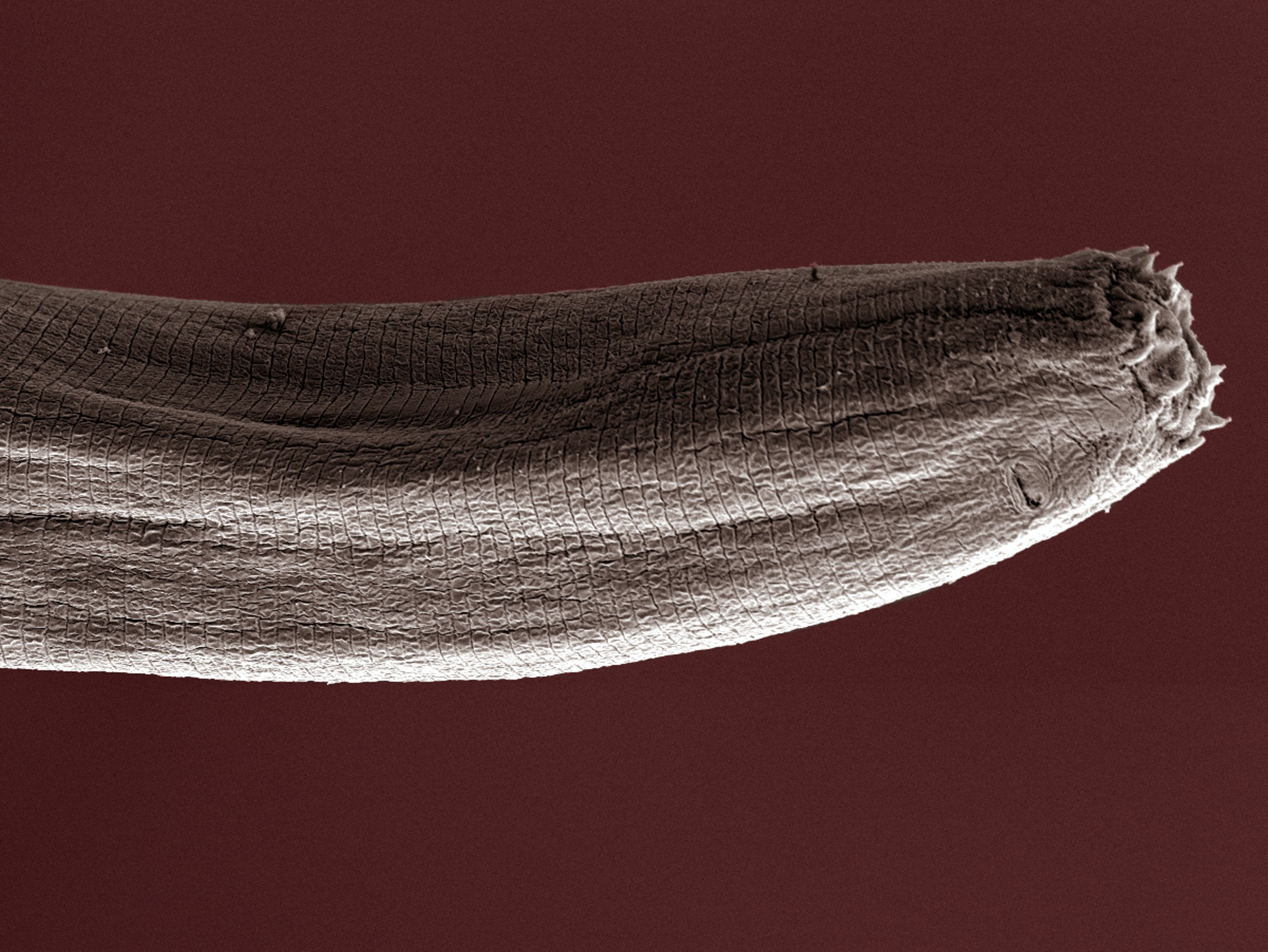 Scientists Are Puzzled by New Worms That Have No Dicks