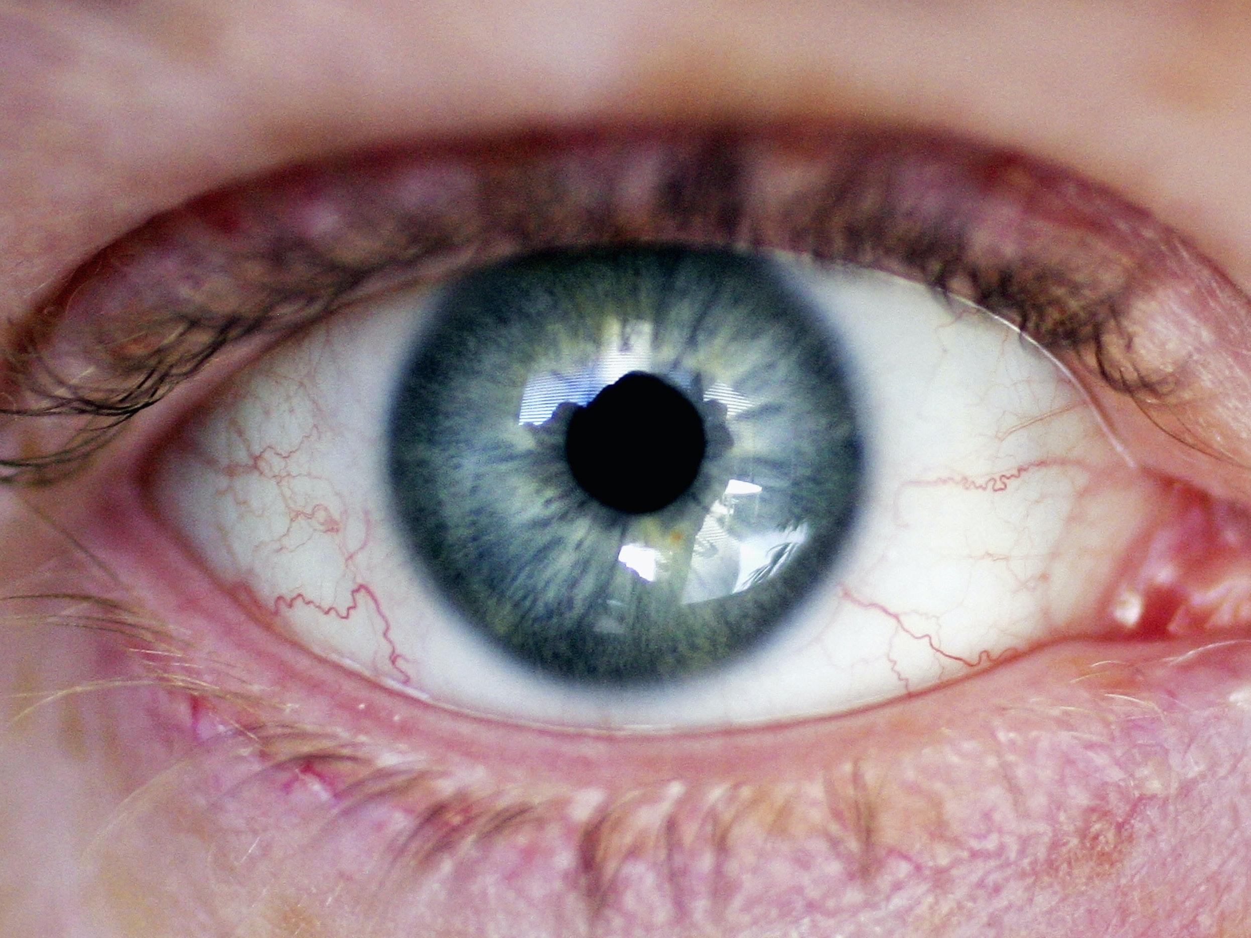 Google DeepMind May Scan Eyes to Spot Diseases
