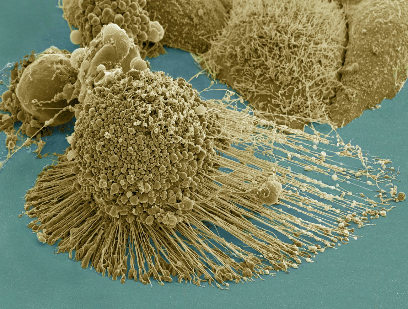 Title: HeLa-IV Description: Scanning electron micrograph of an apoptotic HeLa cell. Zeiss Merlin HR-SEM. Categories: Research in NIH Labs and Clinics Type: Color, Photo Source: National Institutes of Health (NIH) Date Created: 2013 Date Added: 8/9/2013