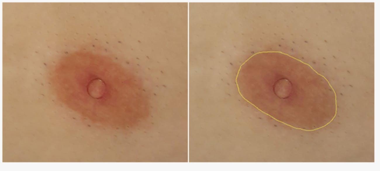 nipple study