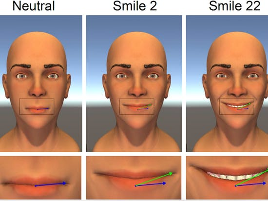 science smile simulation perfect symmetry