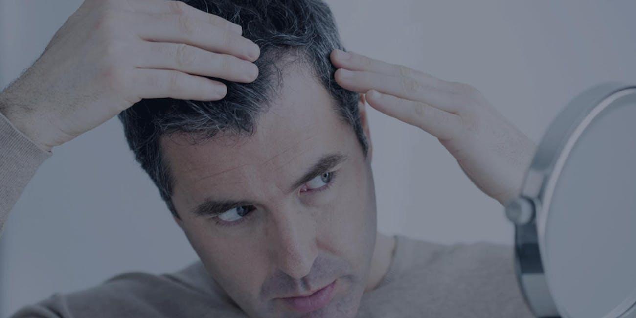 Best Hair Loss Treatments TRX2 natural hair loss supplement Oxford Biolabs minoxidil alternative