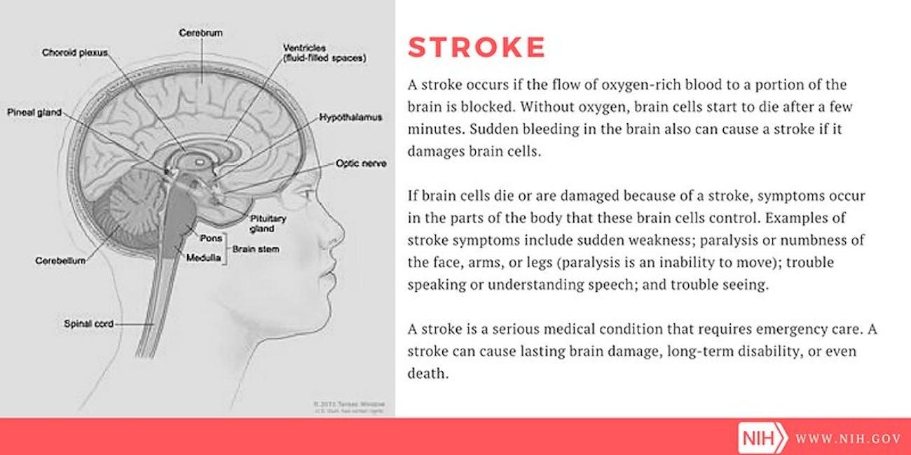 stroke, ni