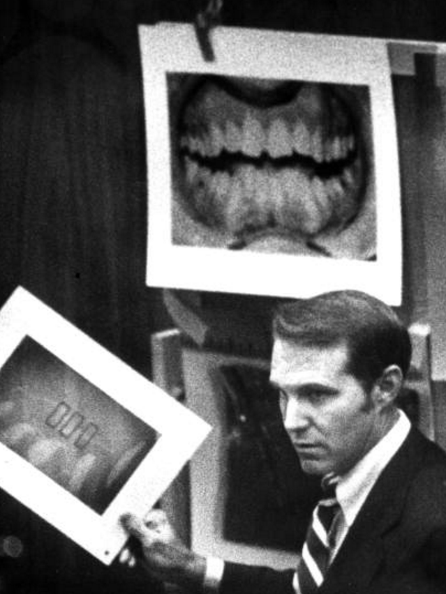 Dental evidence used against Ted Bundy.