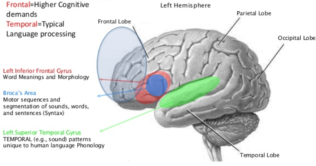 Language areas of the brain.